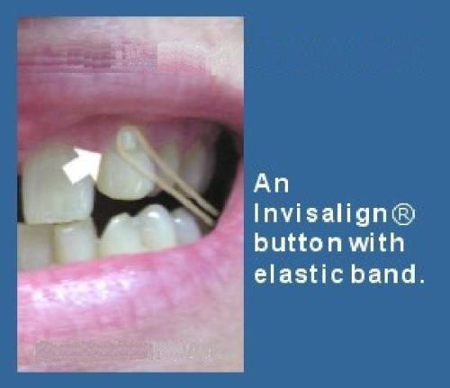 Orthodontic Lingual Buttons Bondable